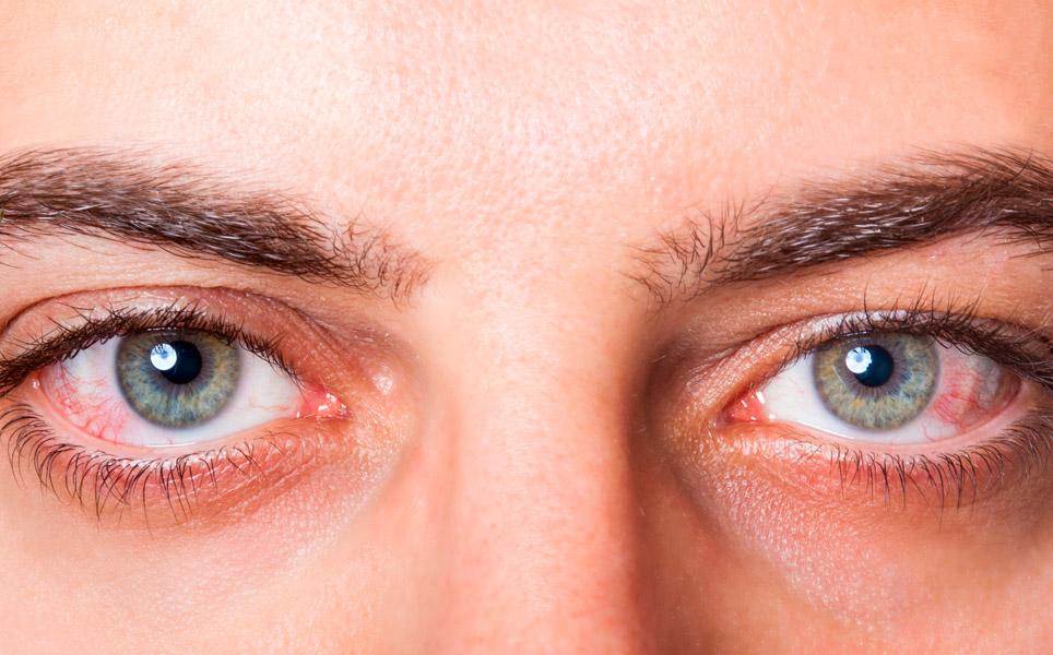 Ojos con alergia y Vispring