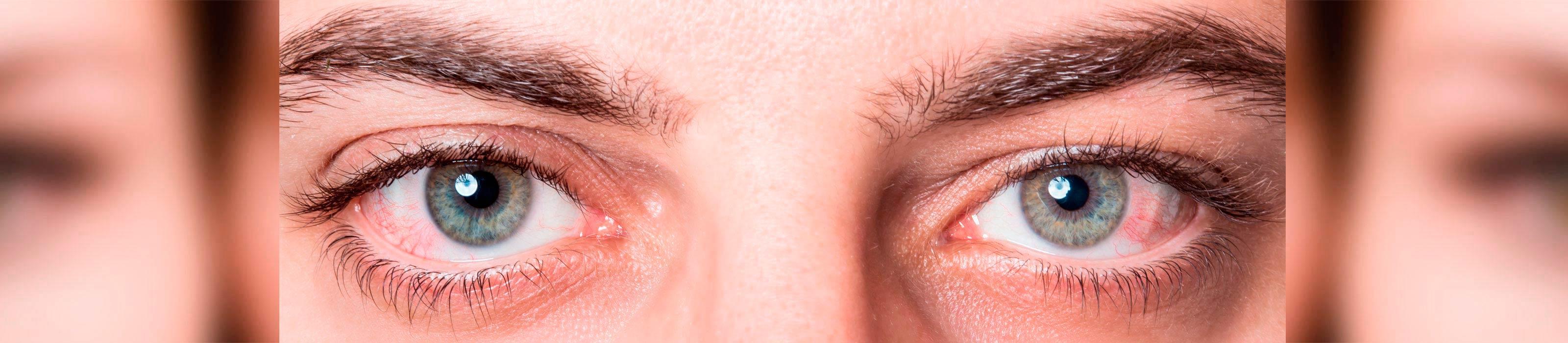Alergia en los ojos y ojos rojos